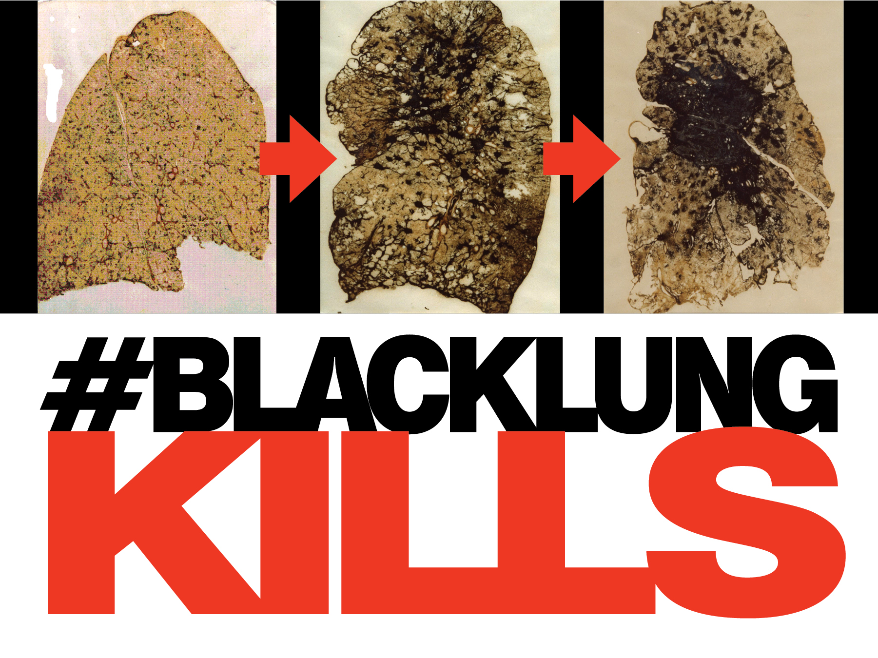 Blacklungkills_lungs_text
